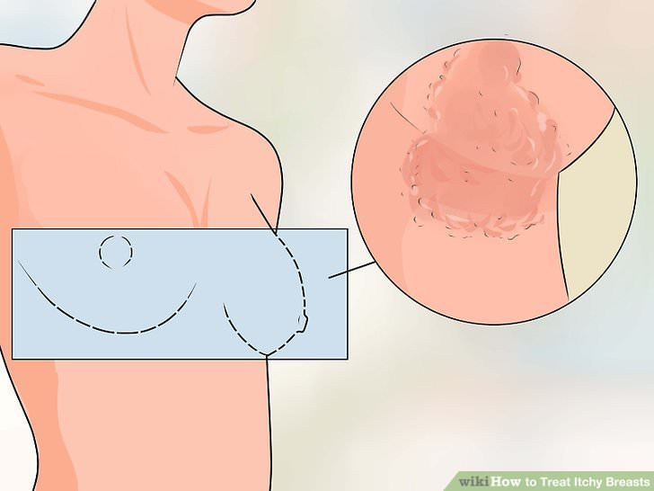 7 Signals of Breast Cancer