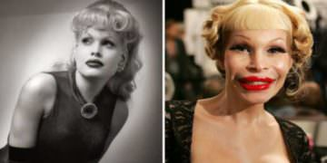 Plastic Surgery Fails That Ruined Celebrities