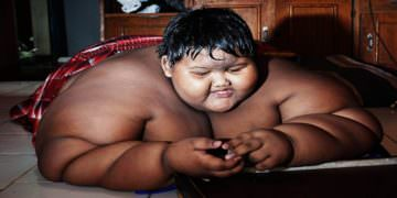 10 Years Old Obesity Patient Child