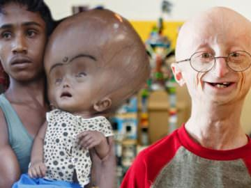 10 Kids Born With RARE Medical Conditions