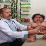 Obese Children Are Selling Their Kidneys For Treatment